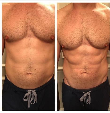 Male abdomen before and after photo showing InstaSculpting improvement.